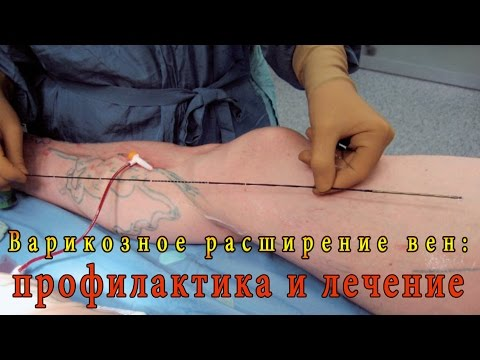 Варикозное расширение вен: профилактика, лечение, реабилитация.