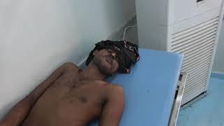 سقوط قذائف هاون حوثية على منطقة المتينة وإصابة مواطن بجروح خطيرة