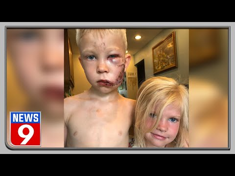 6-year-old boy saves sister from dog attack!