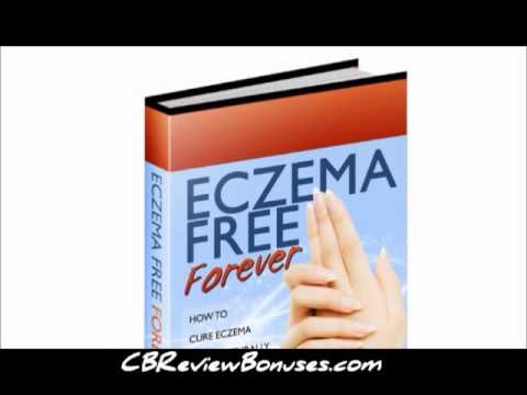 How to Stop Eczema Itching   Curing Eczema Naturally With Eczema Free Forever