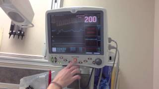 ADENOSINE cardioversion of SVT
