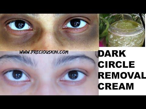 Reduce/ Lighten DARK Circles in just 7 DAYS | Aloe Vera DARK Circle Removal Cream