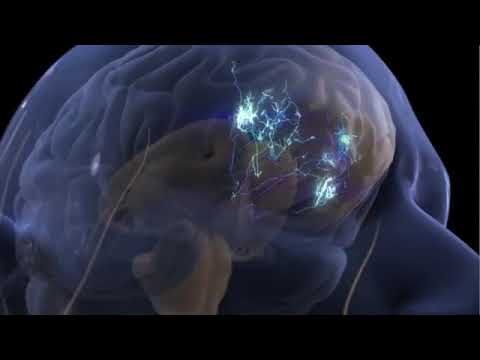 Video 2   Pain Perception and the Human Brain