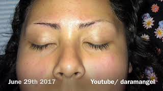 EYEBROW GROWTH JOURNEY 2017 (pictures)