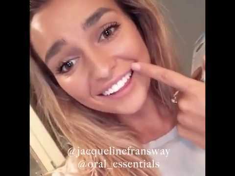 Lumineux Whitening Strips Results Youtube