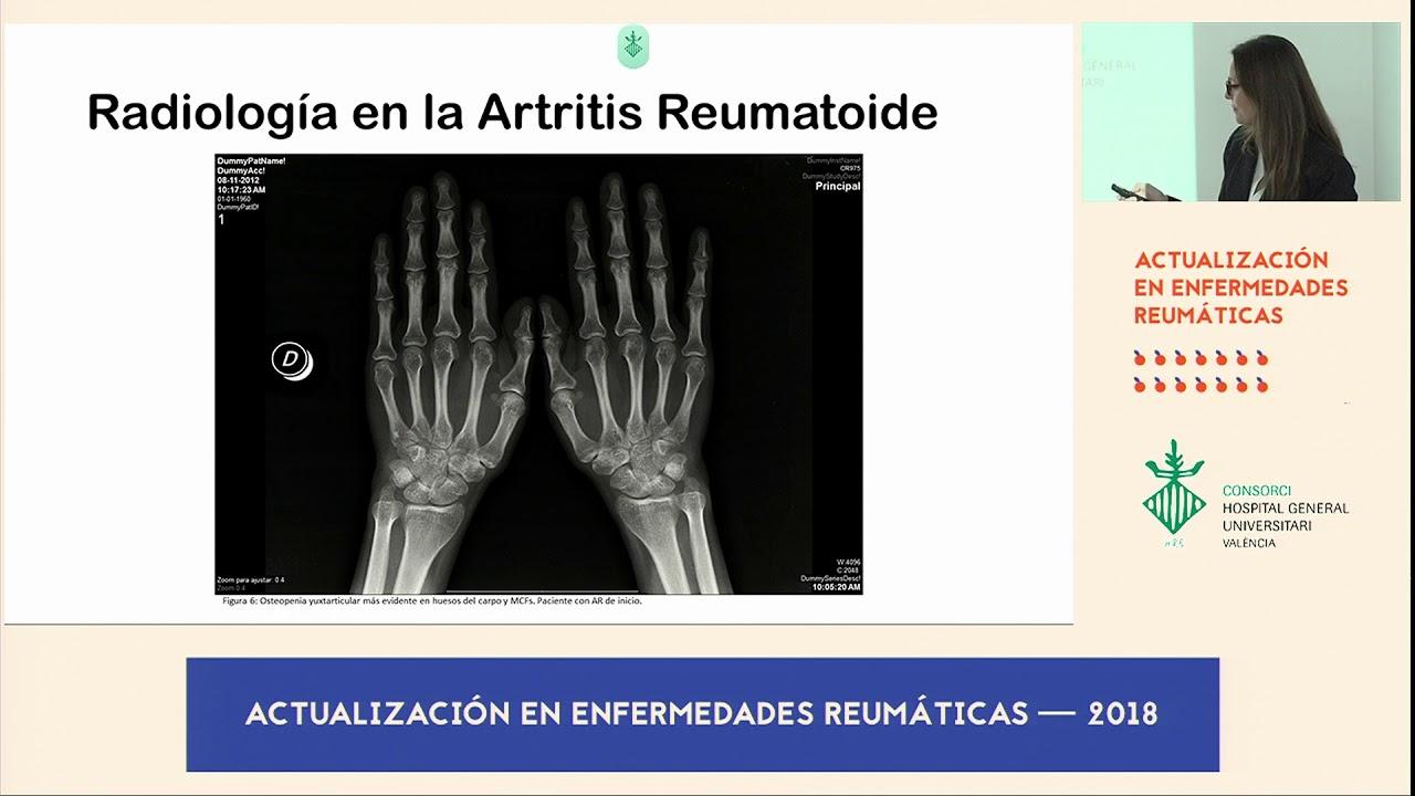 artrita artroso a arcadelor