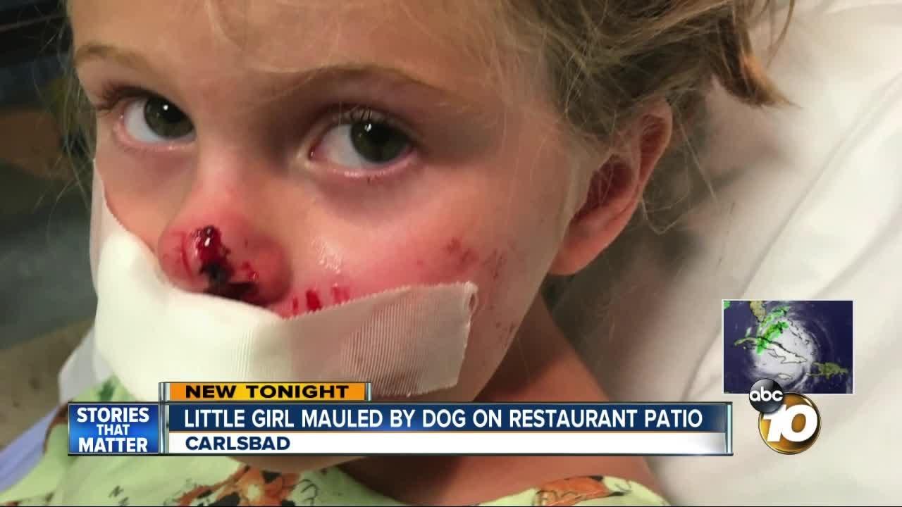 Little Girl Bitten By Dog Restaurant Patio Youtube