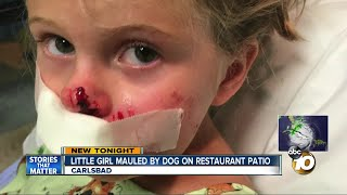 Little girl bitten by dog restaurant patio