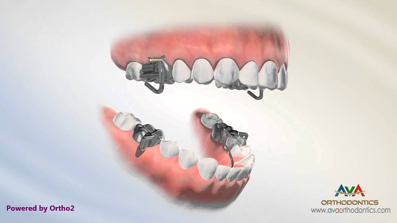 Overjet Aka Overbite Treatment By Mara Orthodontic
