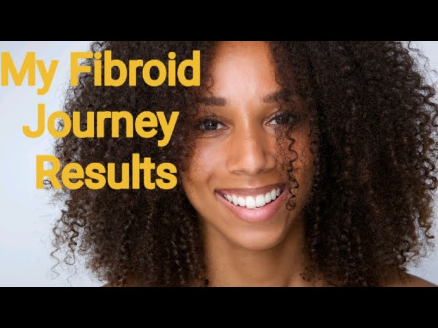 How I shrunk my Fibroids Naturally  Using Light Therapy