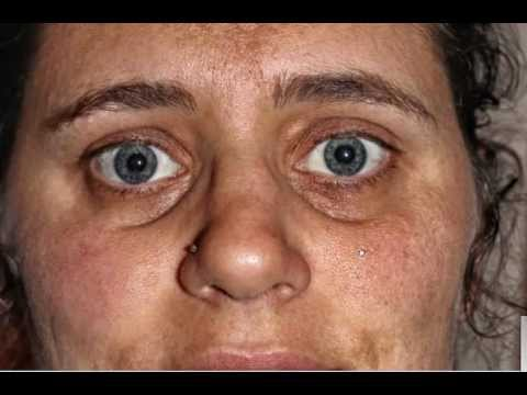 Cell salts facial diagnosis