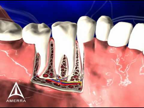 Tooth Anatomy - 3D Medical Animation - YouTube
