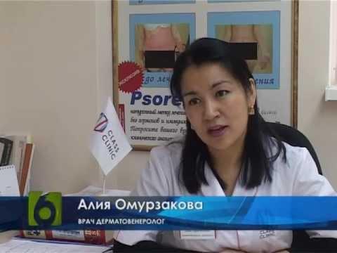Псориаз у детей, симптомы и лечение псориаза