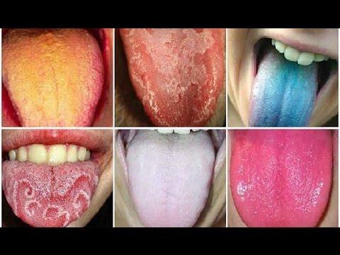 Porque salen callos en la lengua