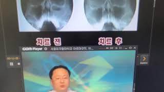 #HCN 서초방송 방송출연입니다 아하로마이비인후과 유강…