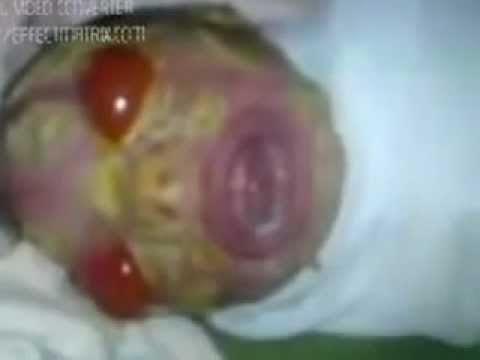 Amazing baby born..Alien or human???? - YouTube