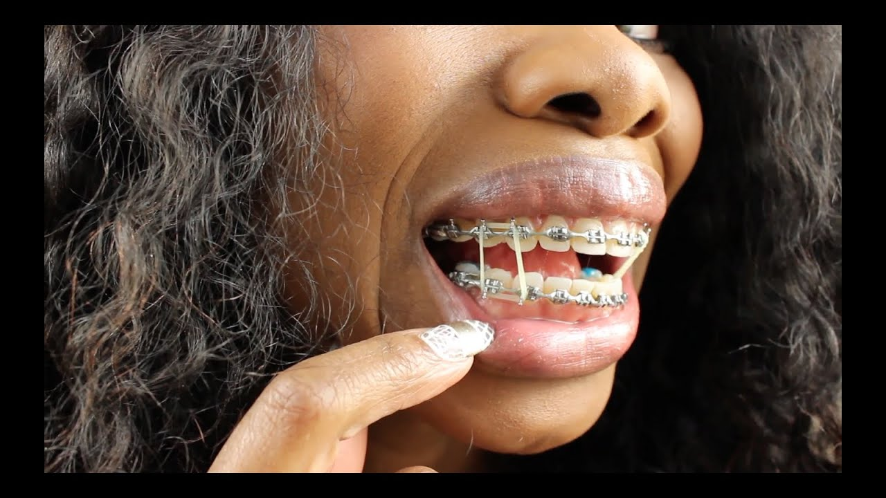 Braces Update 49 Weeks Excruciating Pain And Double Rubber Bands
