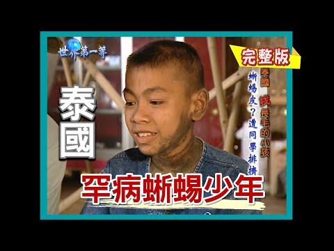 【泰國】烏汶蜥蜴少年 罕見皮膚疾病|《世界第一等》122集小馬精華版