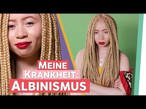 Albinismus – Ich bin eine Schwarze Frau mit Weißer Haut. | Auf Klo