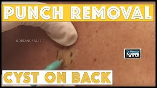 Punch removal of a Cyst on a patient with Tinea Versicolor