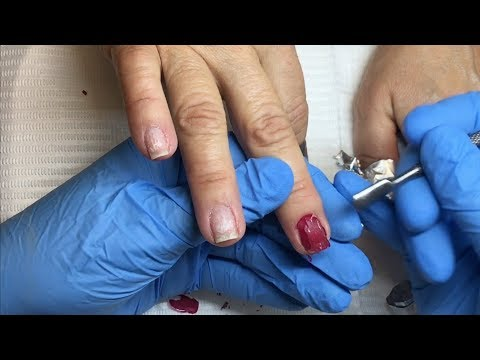 Removal of IBX Boost w/gel polish on top