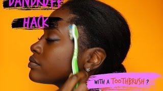 Easy Dandruff Hack For ALL Hair Types
