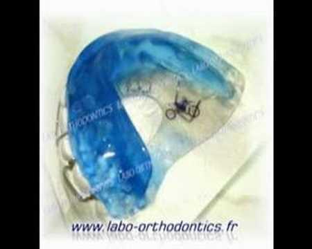 8 meilleures images du tableau Orthodontie | Orthodontics ...