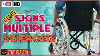 5 Multiple Sclerosis Symptoms