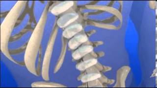 Do You Suffer From Slipped Or Herniated Discs?