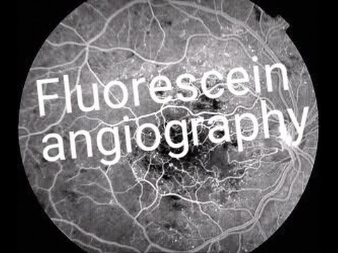 Fluorescein angiography FFA Dye test in eyes