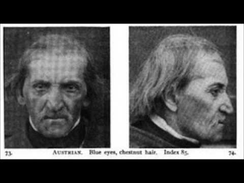 The Dinaric Dinarid Facial Type Youtube