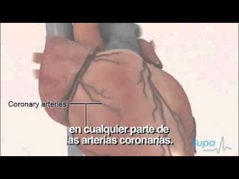 La derivación de la arteria coronaria aumenta la erección