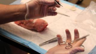 Using Adson Forceps