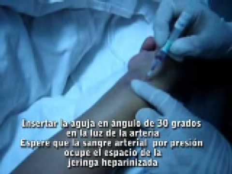 Gasometria arterial tecnica