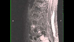 hqdefault - Back Pain With Metastatic Prostate Cancer