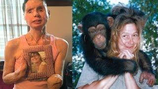 8 unerwartete Tierangriffe auf Menschen