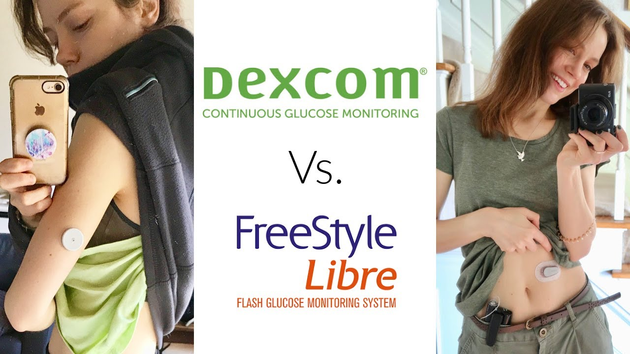 Dexcom G6 Vs. Freestyle Libre | She's Diabetic