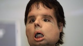 Repeat youtube video Extraordinary People Stories - The World's First Face Transplant
