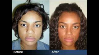 Rhinoplasty Before & After - Plastic Surgeon New York