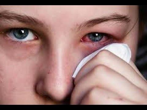 Cách điều trị bệnh đau mắt đỏ – [Trigaicotsong.com]