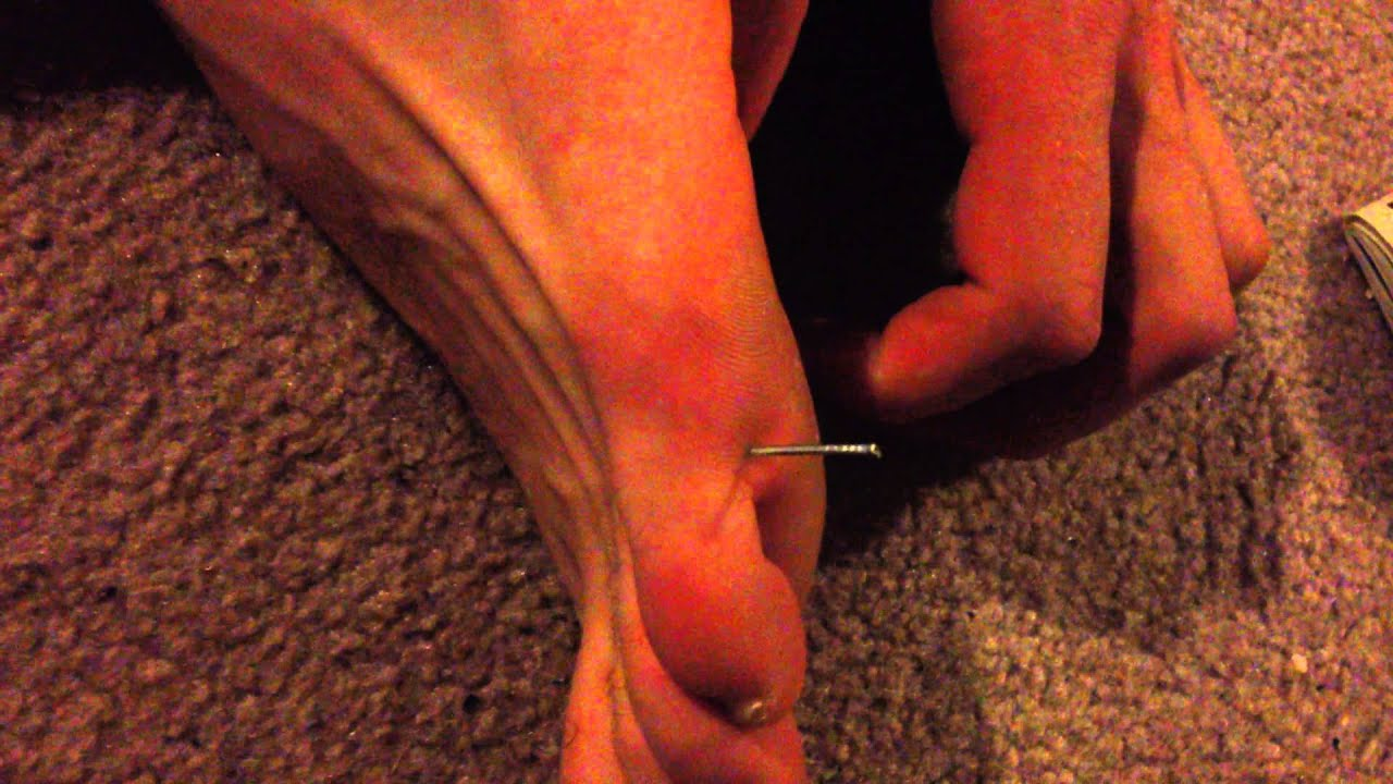 Nail in Foot - YouTube