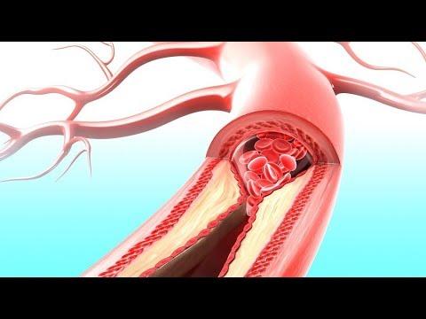 остеохондроз у сахарного диабета