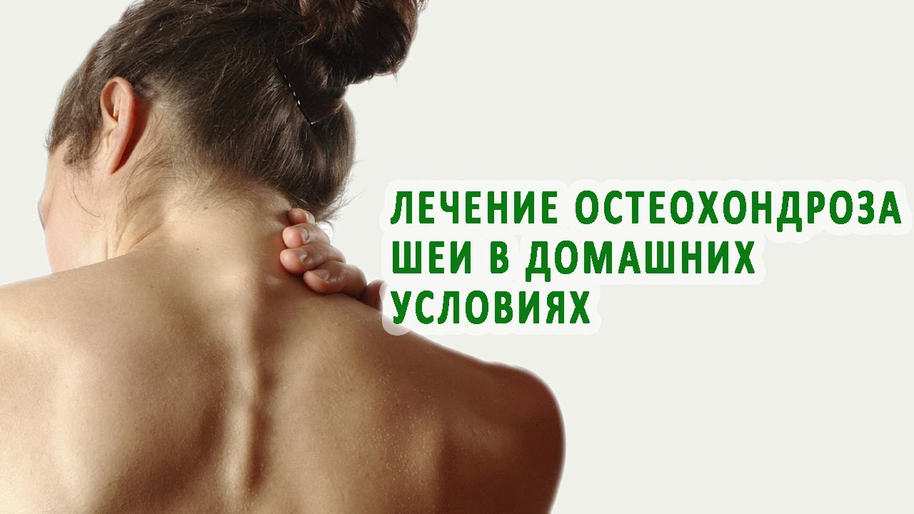 Как вы лечили остеохондроз шеи