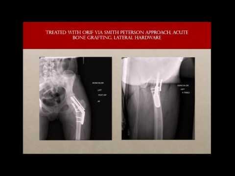 Avoiding failures with hip fracture fixation