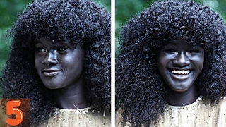 5  People With Unique Skin Colors thumbnail