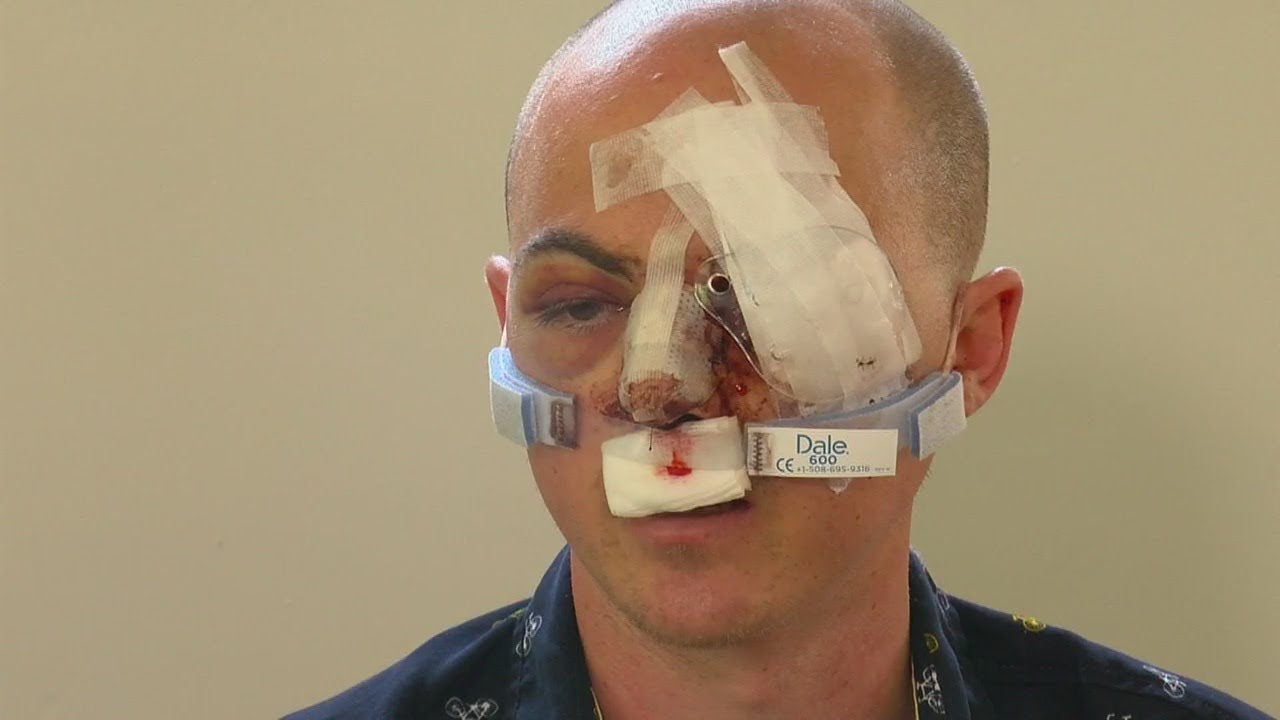 Man Who Lost Eye In May 31 Protest Sues City Of Mpls. For More Than $10M