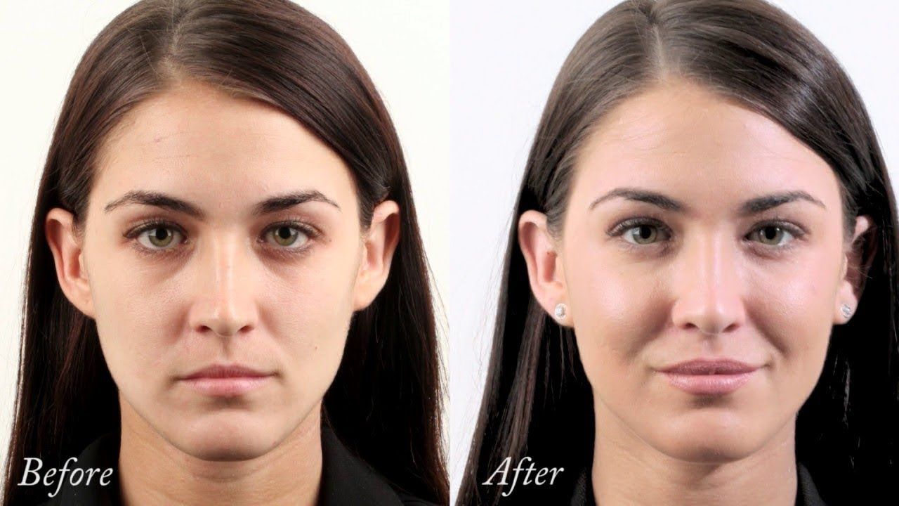 Monica's Dermal Filler treatment to cheeks, lips, temples, forehead