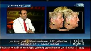 الناس الحلوة | التقنيات الحديثة فى عالم تجميل الاسنان مع د.نورالدين مصطفى