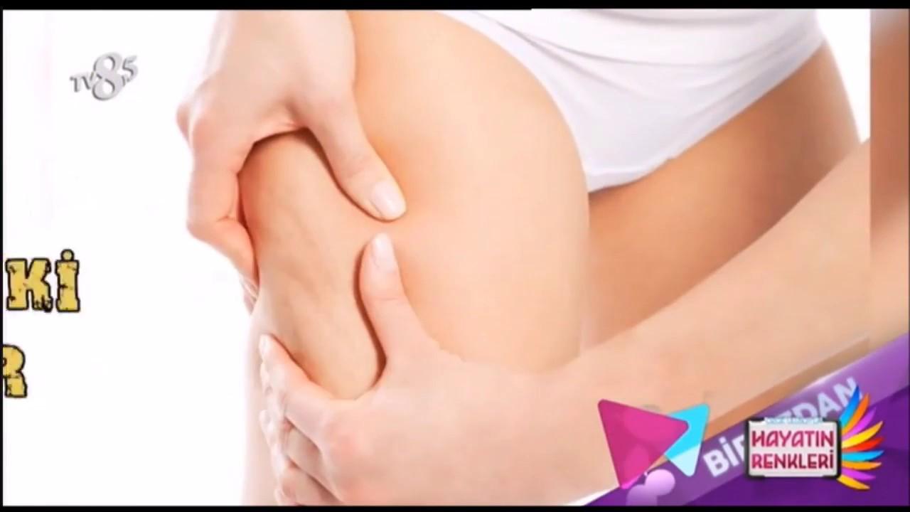 Ayak Şişmesi Tedavisi İçin 9 Öneri