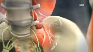 Repeat youtube video Das Kreuz mit dem Kreuz: Rückenschmerzen